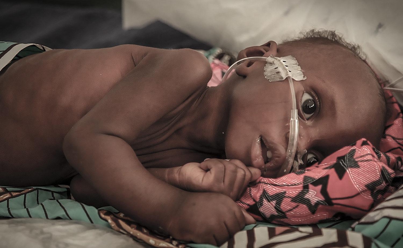 Det lille barn fra Nigeria er alvorligt syg af sult og i behandling for underernæring.