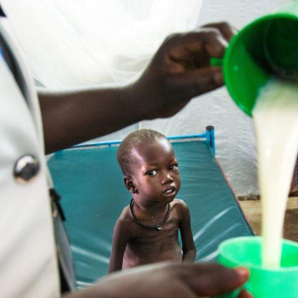 Da 2-årige Emmanuel fra Sydsudan blev indlagt, var han så svækket af sult, at han ikke engang kunne tygge. Hans liv blev reddet, fordi vi hurtigt fik ham i behandling med højenergimælk.