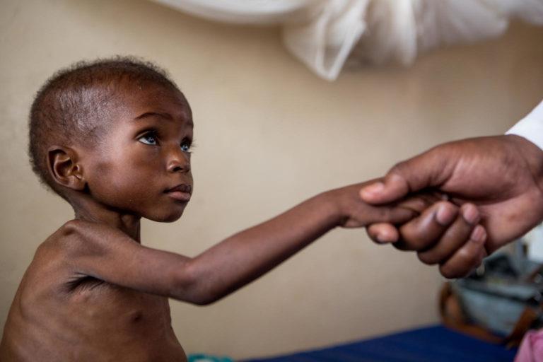 Nøden hærger i DR Congo børn sulter og lider af underernæring
