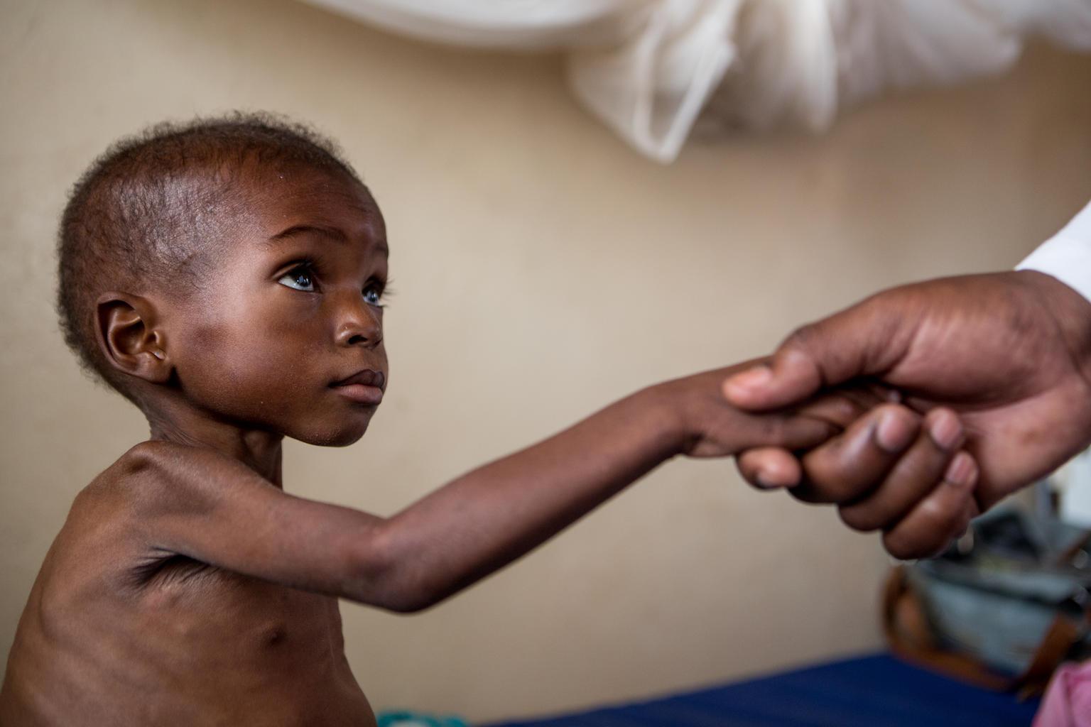 Sult har konsekvenser langt ind i voksenlivet