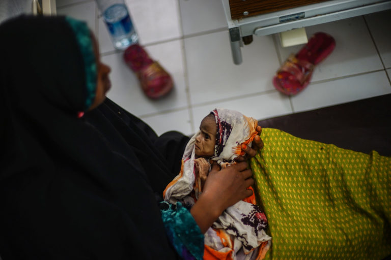 Hawa-underernæring-UNICEF-Jan-Grarup-Somalia-2018