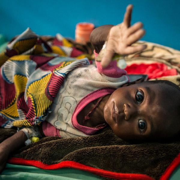 Den lille underernærede dreng Ibrahim Mahamadou rækker ud efter kameraet