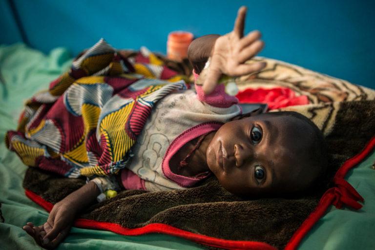 UNICEF/2017/Dicko/Malnutrition/Timbuktu/Child