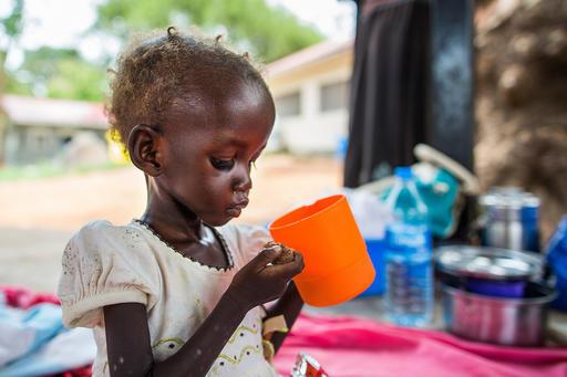 Maria John på 2 år er i behandling for underernæring på et UNICEF støttet stabiliceringscenter på hospitalet Al Sabbah i Juba i Sydsudan