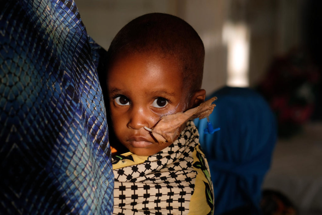 UNICEF/2017/Rich/Malnutrition/Somalia