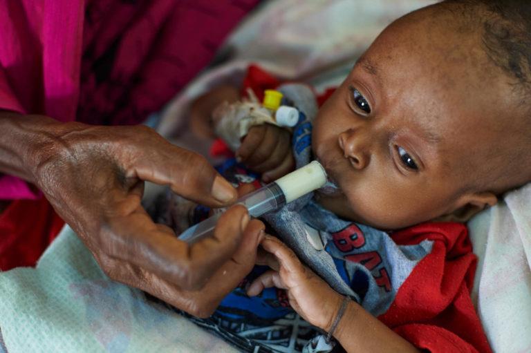 UNICEF/2018/Noorani/Malnutrition/Sudan