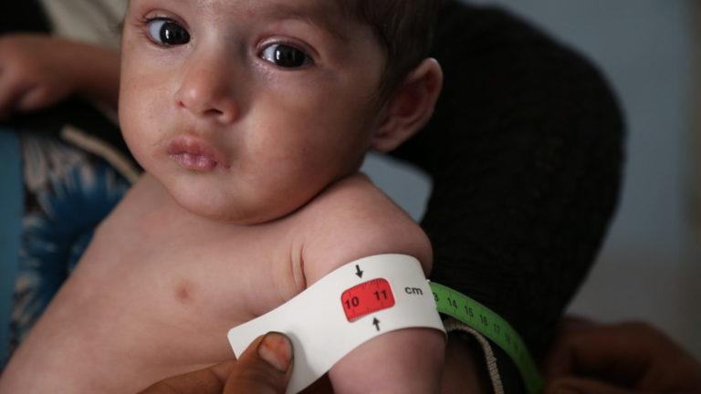 Et barn der lider af underernæring i Yemen