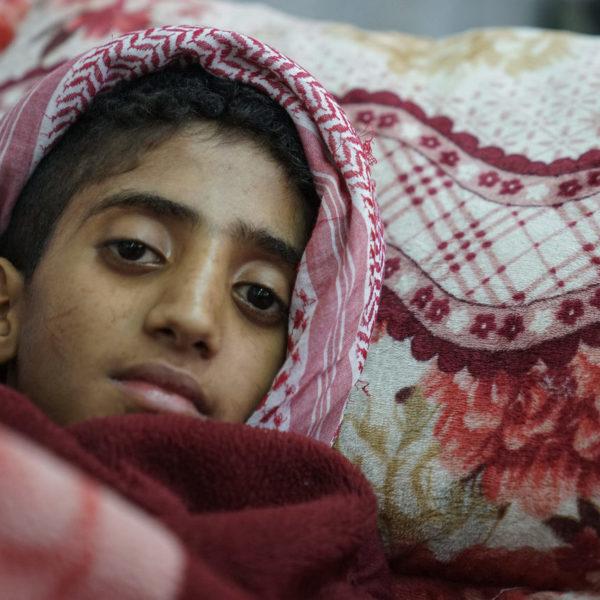 Angreb på Hodaida truer Yemens børn, konflikten er en humanitær katastrofe, her ses en dreng, på et hospital, der har koleara og venter på behandling