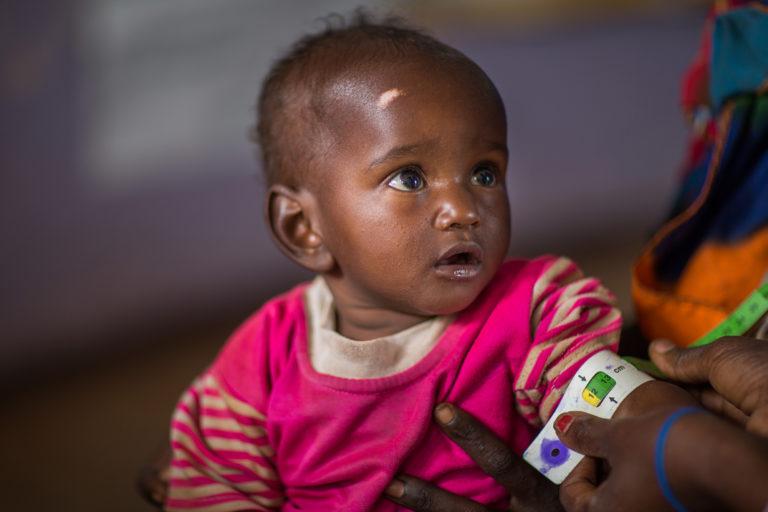 En lille pige bliver målt for underernæring da hun bor i hungersnød ramte Etiopien