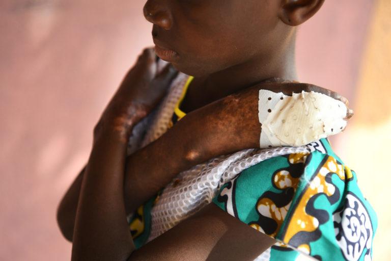 Grace er kun 8 år gammel og har allerede oplevet ting, ingen burde udsættes for. © UNICEF/2017/UN0149683/Dejongh