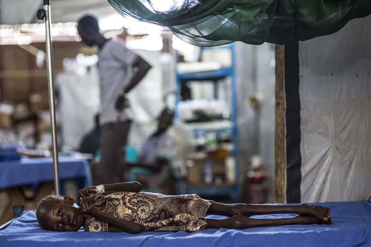4-årige Nyajime Guet fra Sydsudan blev indlagt på en UNICEF-støttet klinik med alvorlig underernæring.