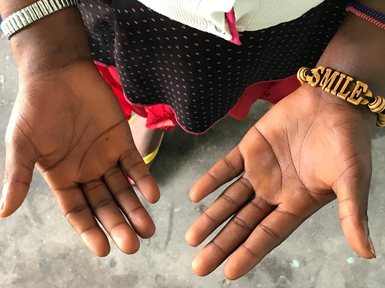 børnesoldat-dr-congo-humanitær-krise