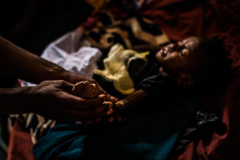 underernæring-barn-dr-congo