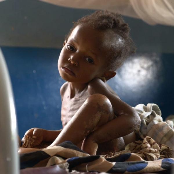 Sult Congo Underernæring