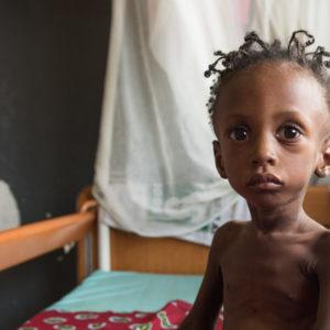Barn sulter og modtager behandling for sin underernæring på unicef støttet hospital