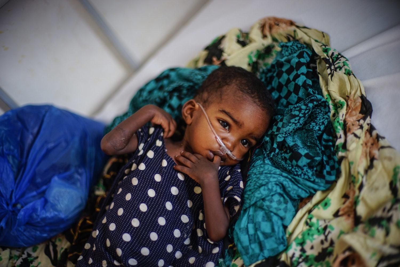 Et lille barn i behandling for underernæring på Ainabo stabiliseringscenter.