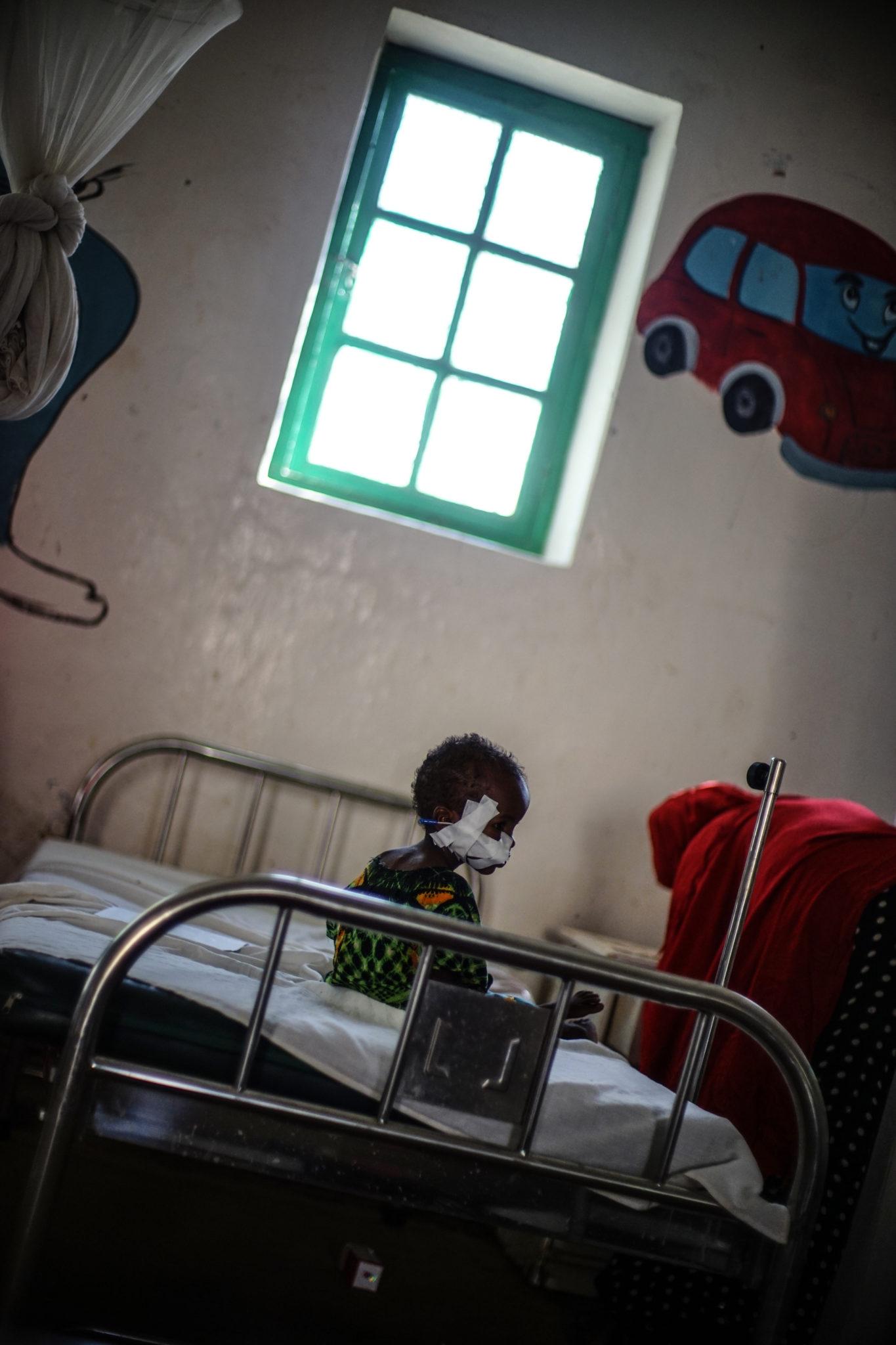 Et lille barn er i behandling for akut underernæring på Burao stabiliceringscenteret, Somalia.