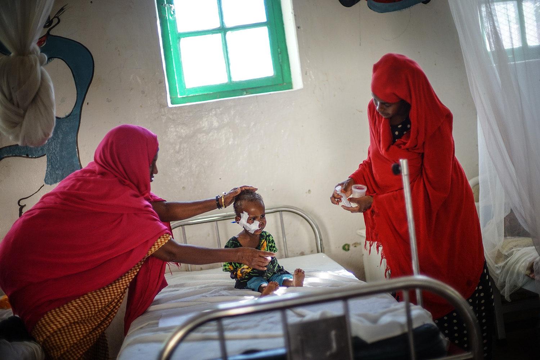På Burao stabiliceringscenteret modtager børn, der lider er svær underernæring behandling