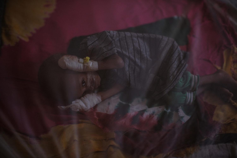 Et lille barn ligger under et myggenet på Ainabo stabiliseringscenter.