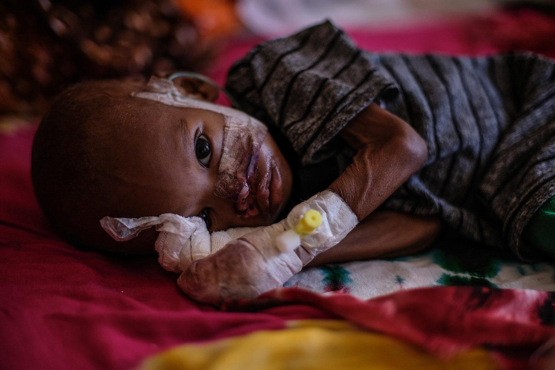 På Ainabo stabiliceringscenter modtager børn behandling mod underernæring