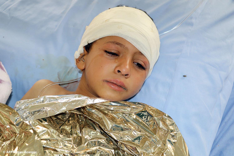 Hjælp Yemens børn - et såret yemenitisk barn ligger på en seng på et behandlingscenter.