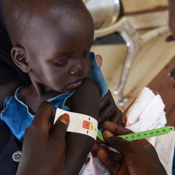 Yar Makoi på 7 måneder bliver målt om armen. Testen viser at hun er alvorligt akut underernæret og har brug for behandling.