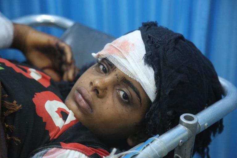 Såret pige bliver behandlet på hospital i Hodeidah, Yemen