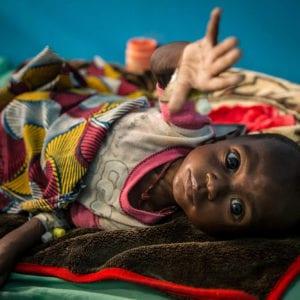 et underernæret barn fra Mali rækker ud efter hjælp. Støt verdens børn