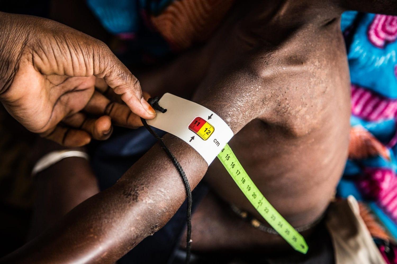 Lille Tening Gueye på 2 år sidder på sin bedstemors skød på et hospital i Senegal. Bedstemoren har taget barnebarnet med på hospitalet, fordi hun er bekymret for den lille pige, der virker svækket og træt. Screeningen af Tening viser hurtigt, at hun er alvorligt underernæret. Hun har brug for behandling med det samme.