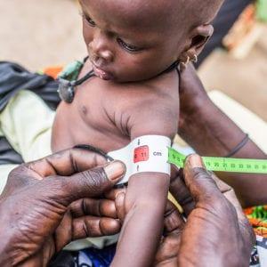 Coumba Seck fra Senegal er kun 7 måneder gammel, men har allerede haft en hård start på livet. Den lille pige lider af alvorlig akut underernæring. Coumbas mor har ikke nok mælk til at give hende tilstrækkelig næring gennem amning, så den lille piges primære mad består af grød lavet af baobabfrugter. Foto: UNICEF/Tremeau