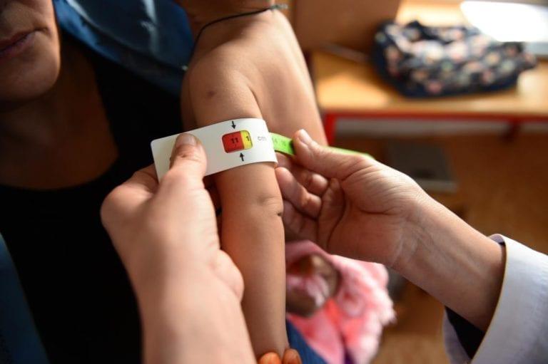 Et barn undersøges for underernæring ved at få målt sin over arms omkreds på en UNICEF støttet klinik i Afghanistan