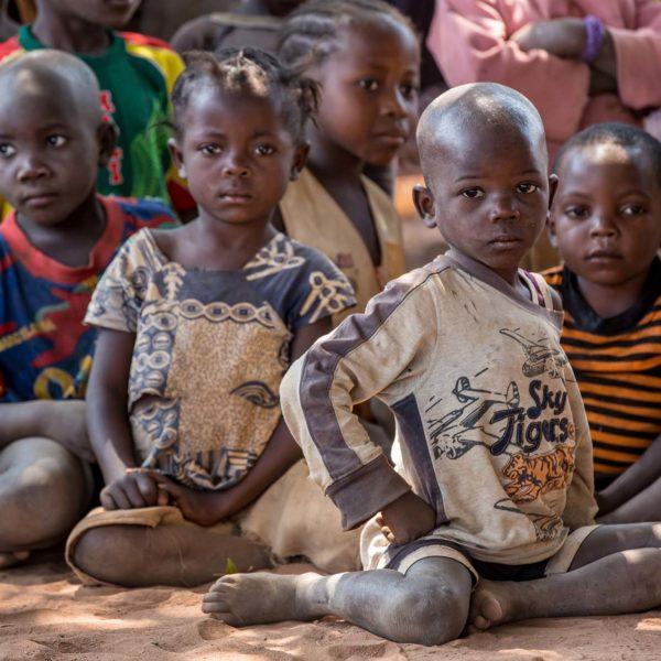 hjælp børn i Congo med ernæring