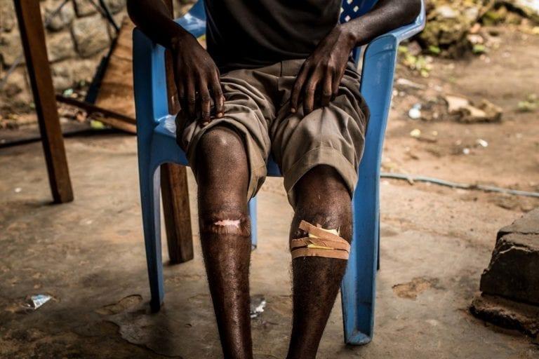 16-årige Albert fra Congo viser sine skader frem. Han blev skudt i begge ben af soldater fra den militsgruppe, han selv var med i.