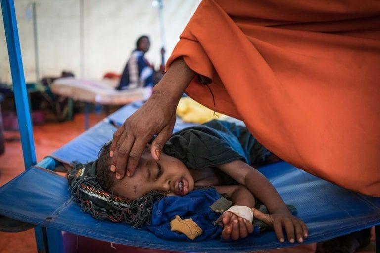 En lille dreng bliver behandlet for kolera på et UNICEF-behandlingscenter i Somalia. Kolera er en af de sygdomme, børn kan få af beskidt vand.