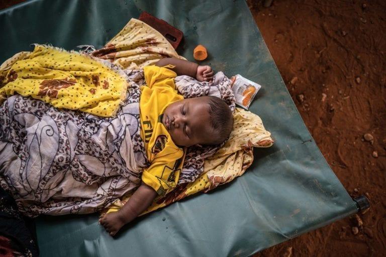 En lille koleraramt dreng hviler sig på et UNICEF-støttet behandlingscenter i Somalia.