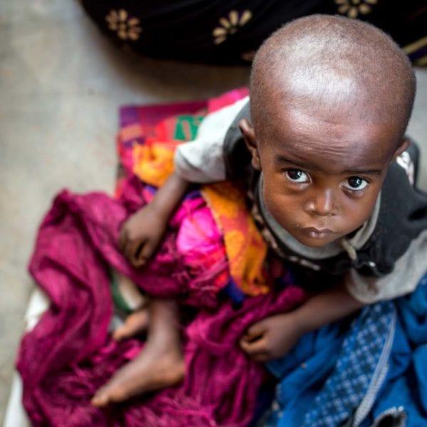 Et barn ramt af sult venter på at modtage behandling i DR Congo